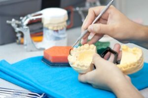 Dental Molding