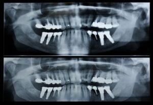 Panorex of patient's teeth.